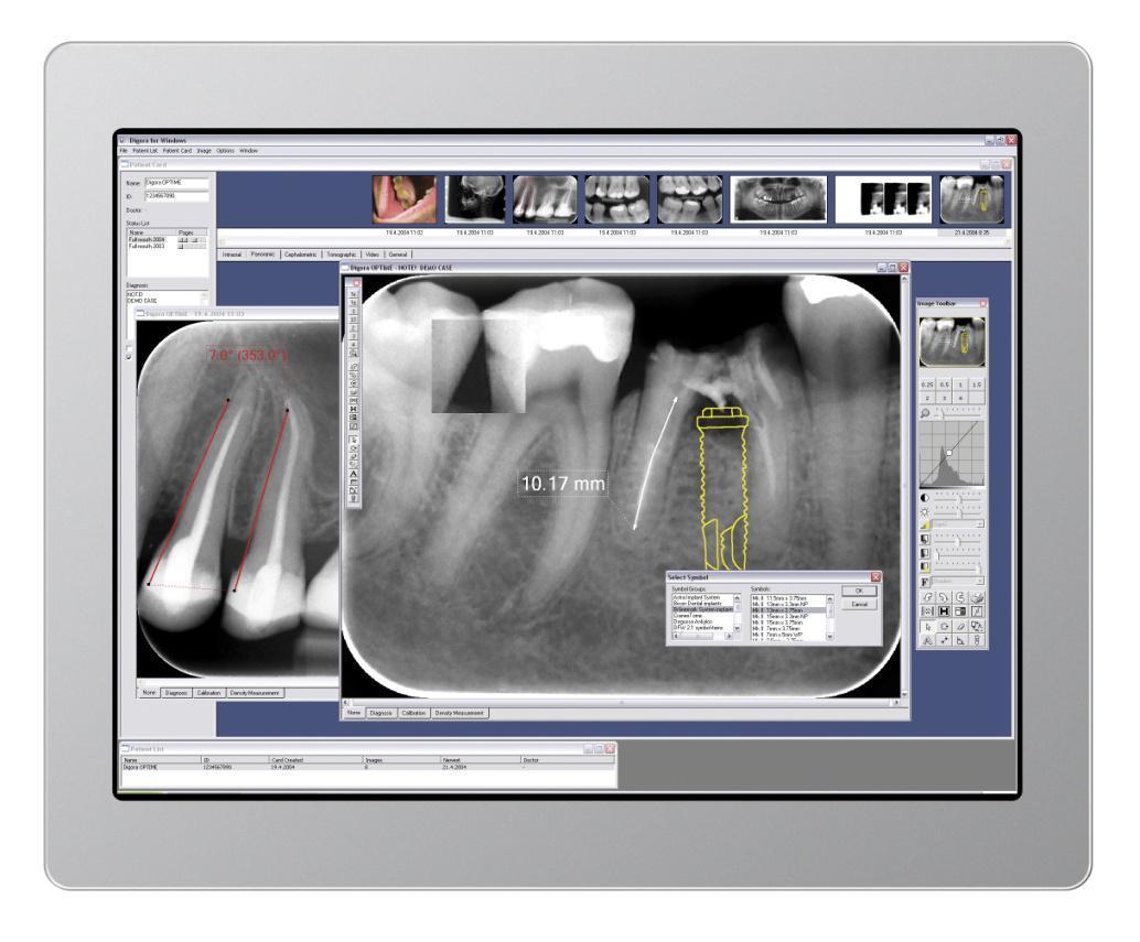 Radiowizjografia cyfrowy Digora
